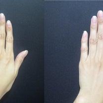 手のシワにはマッサージピール♡~大阪・心斎橋・WCLINIC~の記事に添付されている画像