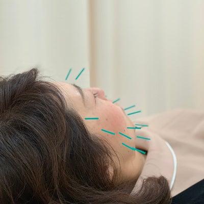 美容鍼の仕組みの記事に添付されている画像
