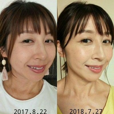 """""""顔コリほぐし""""はマッサージ?エステ??の記事に添付されている画像"""