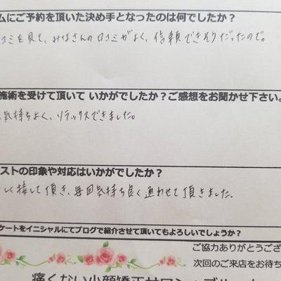 【愛知県半田からご来店】エラ張り解消!小顔矯正の記事に添付されている画像