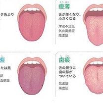 舌からわかる健康状態の記事に添付されている画像