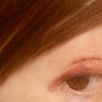 目尻の内出血いつ引くのやら∑(OωO; )の記事に添付されている画像