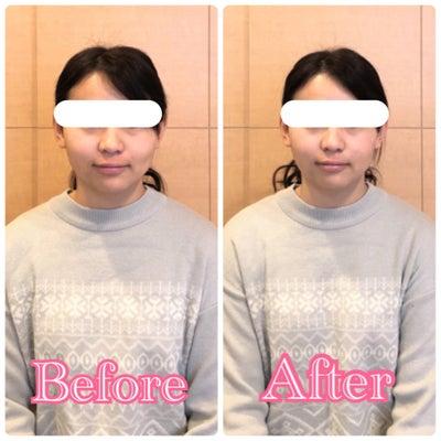 【岡山県 津山市からご来店】眠っている間にこんなに変化する小顔矯正♪の記事に添付されている画像