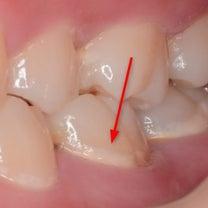 子供の歯の表面にできた白濁は虫歯の始まり!仕上げ磨きの時に早く見つけてあげての記事に添付されている画像