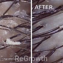 毛穴の大掃除しましょ!の記事に添付されている画像