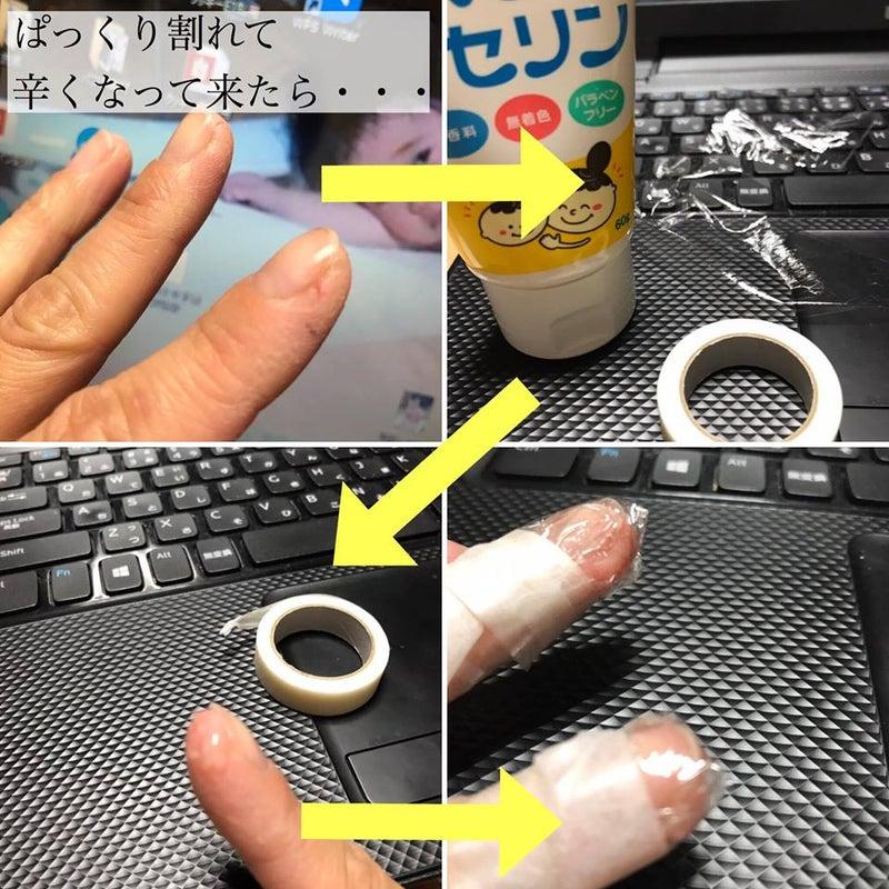 指 ぱっくり 割れ 治し 方
