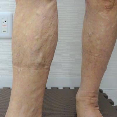 治療後1カ月経過 症例写真(70代・男性)144の記事に添付されている画像
