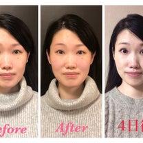 【募集中】もっと人生に華を咲かせたい人のための小顔美人整体の記事に添付されている画像