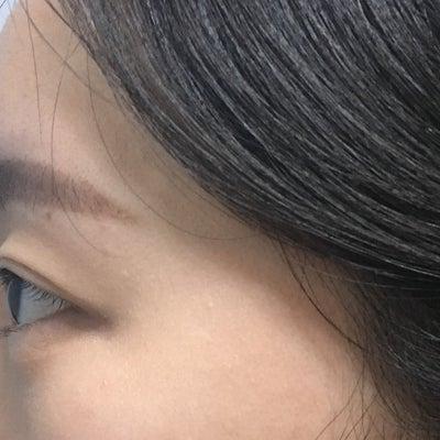 GIRINセルフィー★二重再手術+目尻切開+目下脂肪再配置の記事に添付されている画像