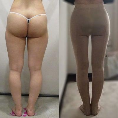 太もも360°+ヒップライン+ふくらはぎ手術のレビューです!!の記事に添付されている画像