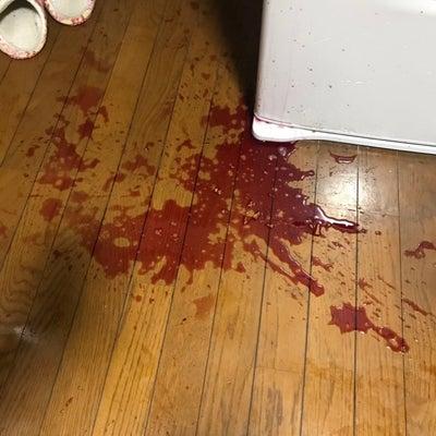 殺人事件か?の記事に添付されている画像