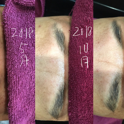 汎発生脱毛症の経過の記事に添付されている画像