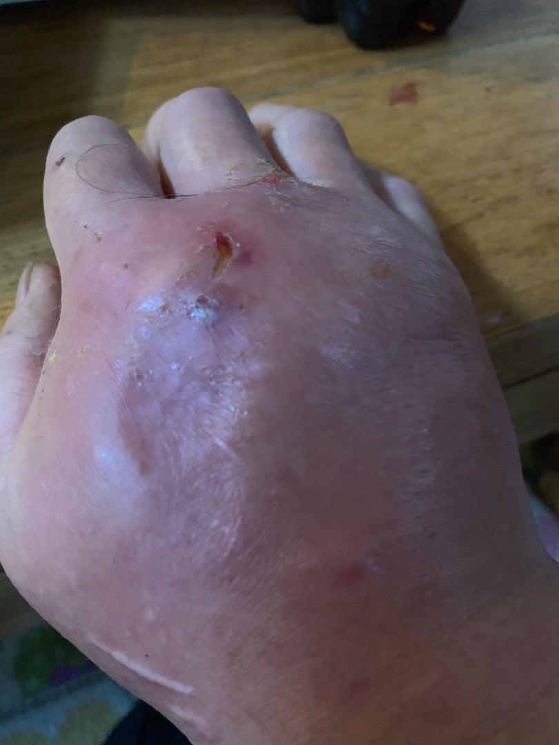 猫キチさん、猫に手を咬まれてとんでもないことになる 猫に尽くした結果がこれなのか?