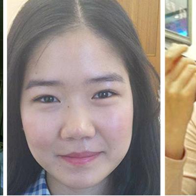 鼻整形で芸能人顔負けの美貌へ☆彡 韓国人女性達の体験談をご紹介!の記事に添付されている画像