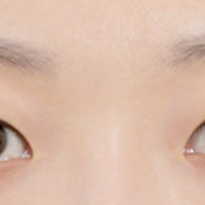id美容外科の目の再手術をご紹介:韓国整形サポートの記事に添付されている画像