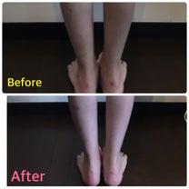 白スキニーの似合う足首になりました。の記事に添付されている画像