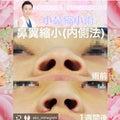 #鼻プロテーゼの画像