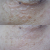 アグネス.炭酸ガス.エルビウムヤグでは治らない・汗管腫(かんかんしゅ).稗粒腫(はいりゅうしゅ)の画像