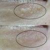 ④【症例】汗管腫(かんかんしゅ).エクリン汗嚢腫(かんのうしゅ).稗粒腫(ひりゅうしゅ)の画像