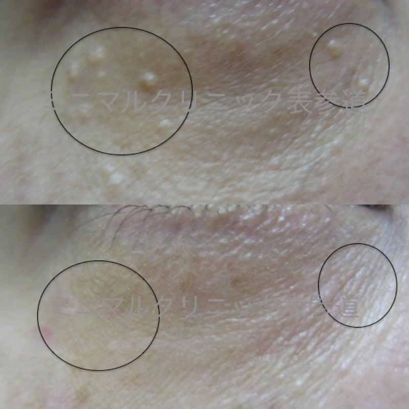 汗 嚢腫 エクリン 目の下にぶつぶつが出来ちゃった!知るべき3つの可能性と解消法