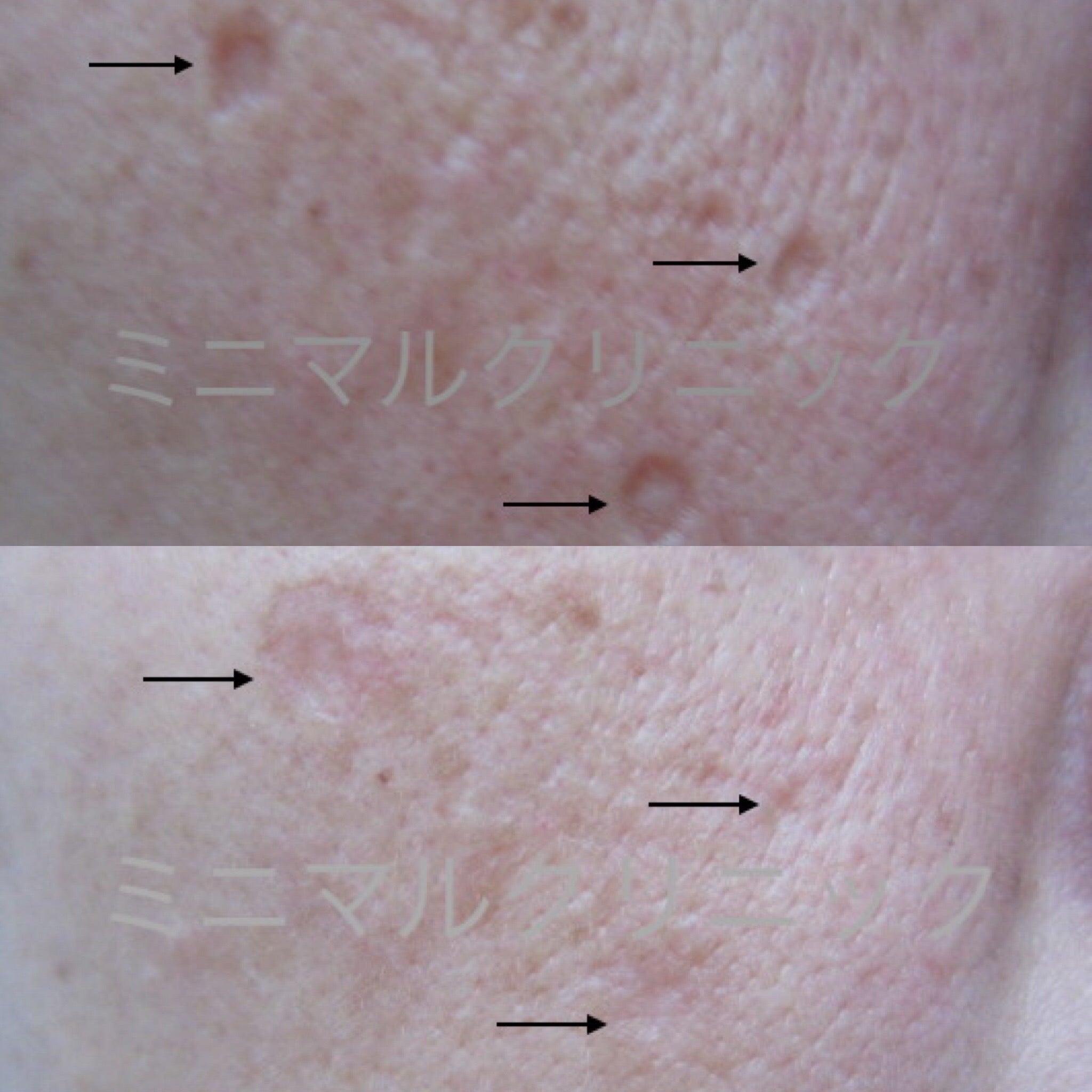 水痘瘢痕除去クリーム