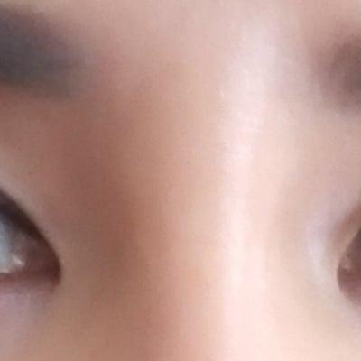眼瞼下垂?まぶたのタルミ取りの記事に添付されている画像