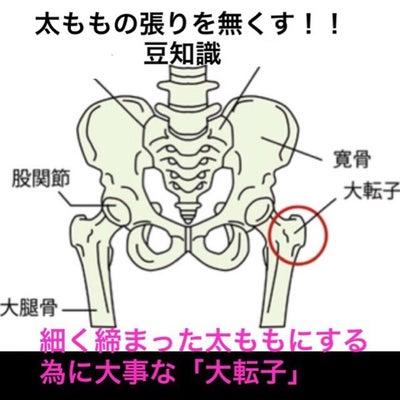 太ももの張りの原因を知ろうの記事に添付されている画像