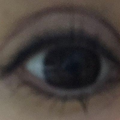81日目✳︎眼瞼下垂手術の記事に添付されている画像