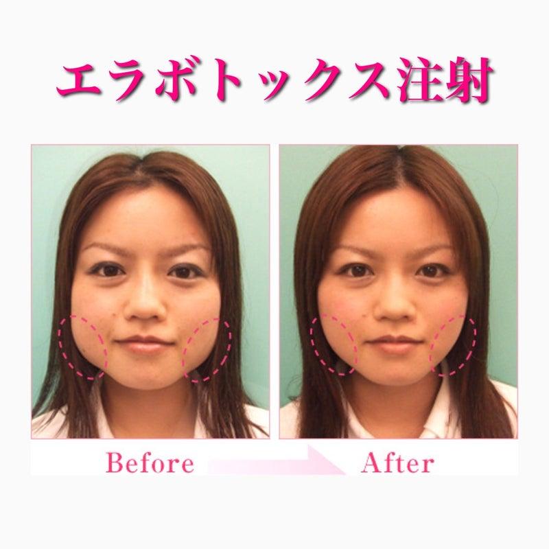 小顔効果エラボトックスの症例