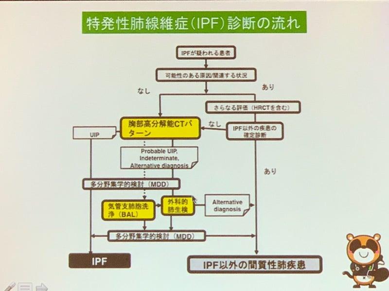 質 ガイドライン 間 性 肺炎