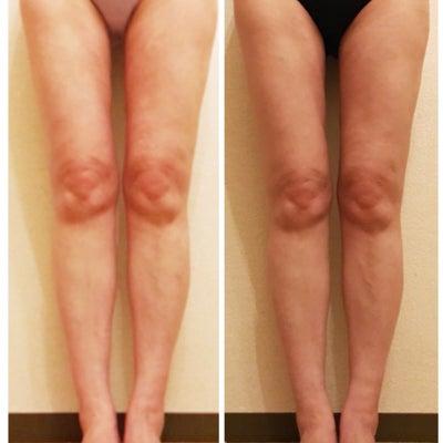 太ももの脂肪吸引!術後78日目!圧迫、1週間なし!現在気になる点!の記事に添付されている画像