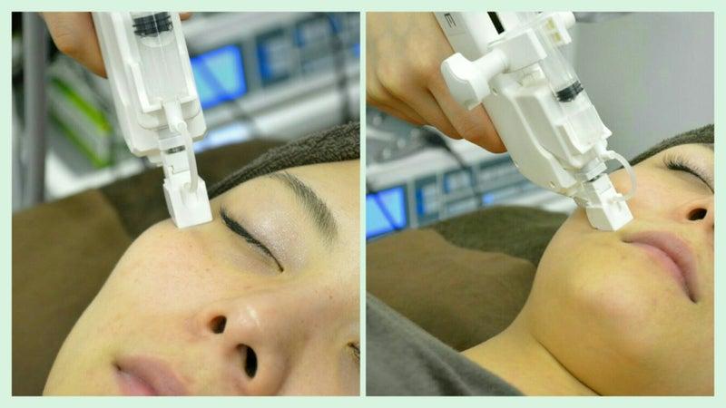 水光エアージェット×ヒト幹細胞GFチャージ