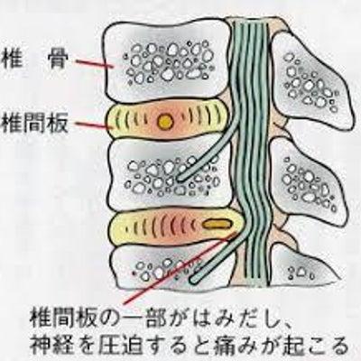 M式テクニック~椎間板ヘルニア~の記事に添付されている画像
