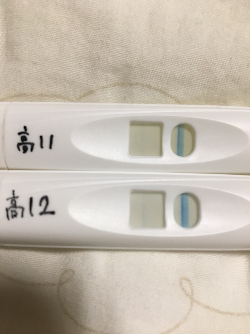 おりもの 白い塊 妊娠