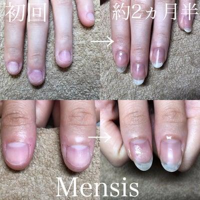 短期間で噛みグセも無くなり美爪に! 深爪卒業 939の記事に添付されている画像