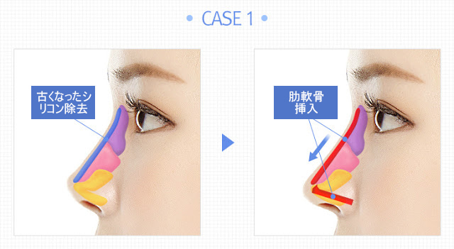 「肋軟骨入れ 鼻」の画像検索結果