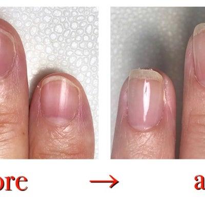 ついイラッとしたら爪をむしってしまう方の記事に添付されている画像