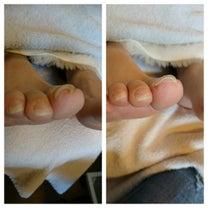 巻き爪補正ケアの記事に添付されている画像