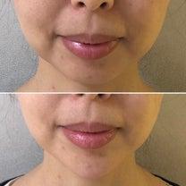 お手軽✨顎のヒアルロン酸注入の記事に添付されている画像