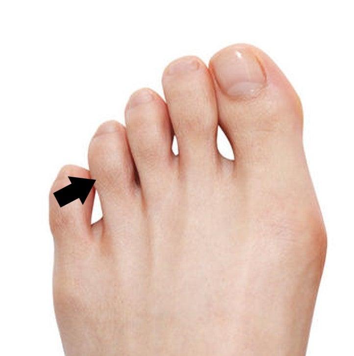 小指 痛い 足 指 の