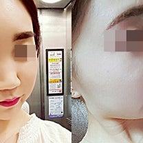 HUMAN美容外科・韓国整形 鼻整形<シリコン+耳軟骨+脂肪注入>の記事に添付されている画像