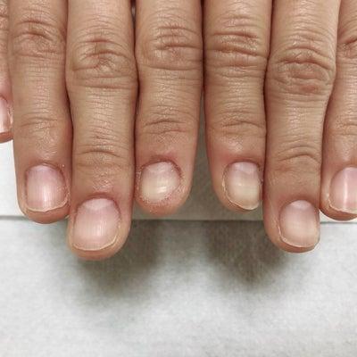 深爪矯正のアフターフォローについて!の記事に添付されている画像