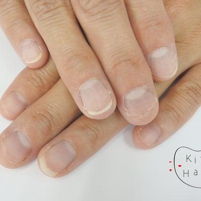深爪矯正・改善に密着!Y様(初回より1ヶ月後まで)の記事に添付されている画像