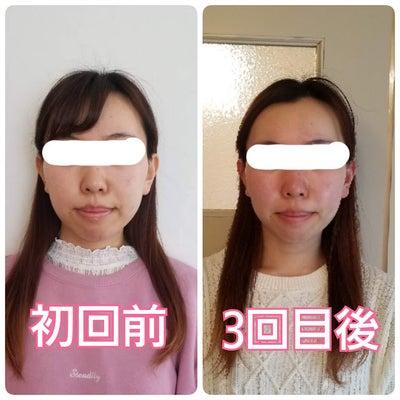 【愛知県武豊町からご来店】お顔の左右差が整う小顔矯正♪の記事に添付されている画像
