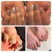 巻き爪補正とジェルネイルの記事に添付されている画像