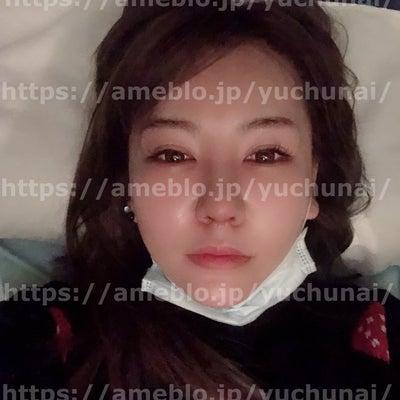 鼻整形&人中短縮手術 10日~12日目!!整形後の必需品!!の記事に添付されている画像