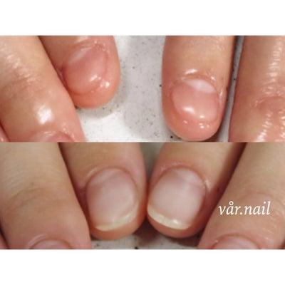 深爪に特化したダメージネイルセミナーの詳細です*追記あり*の記事に添付されている画像