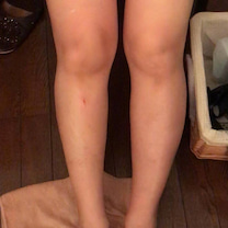 足が太い悩みが、内股になっているからだと分かりました。の記事に添付されている画像