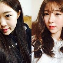 韓国整形コノピ美容外科 整形前後写真の記事に添付されている画像