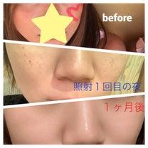 ♡ソバカス退治♡with 湘南美容外科さまの記事に添付されている画像